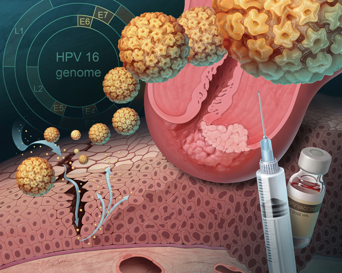 Human Papilloma Virus invading cells lining cervix, pathology of cervical cancer, HPV vaccine and syringe, and genome map in background.